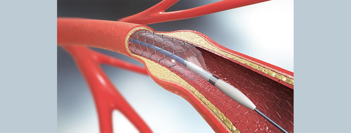 血管護衛者5-MTP:減輕血管支架手術引起的血管再狹窄
