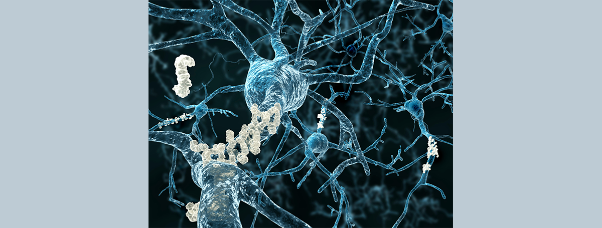 阿茲海默症藥物的新里程碑