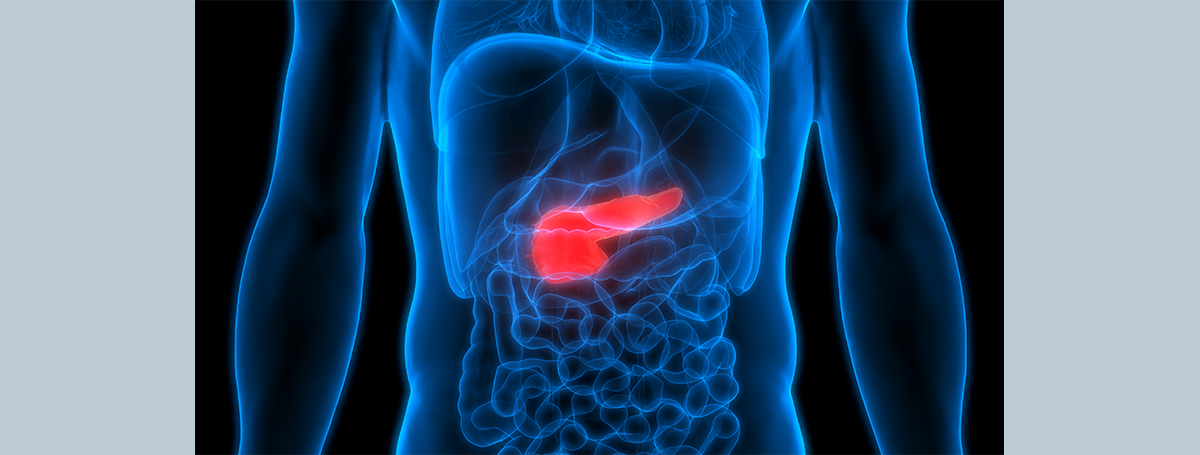 冰與火之戰:如何對付不死的癌王—胰臟癌?