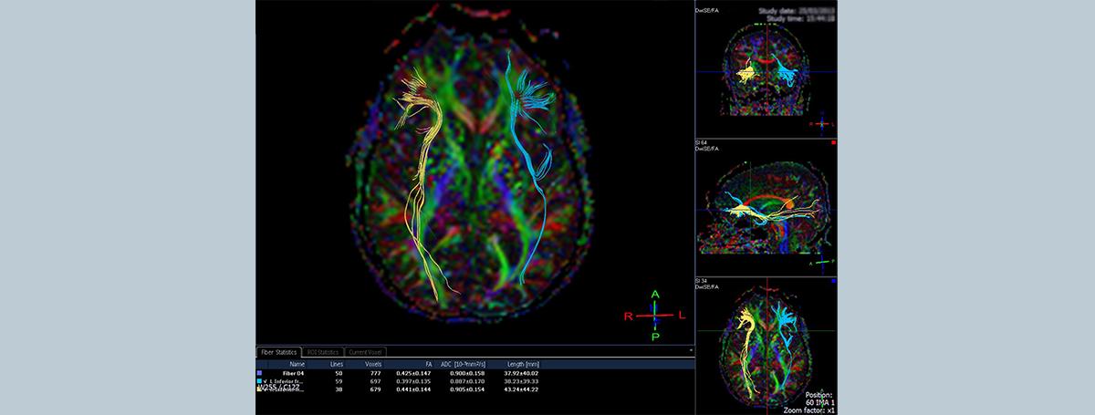 解鎖大腦迷宮—以核磁共振技術建構腦連結體影像,探索疾病!<br>—第2屆科普寫作徵文比賽得獎作品系列—