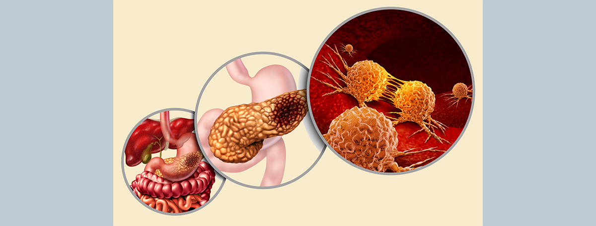 從胰臟癌腫瘤微環境找到治療新解方!